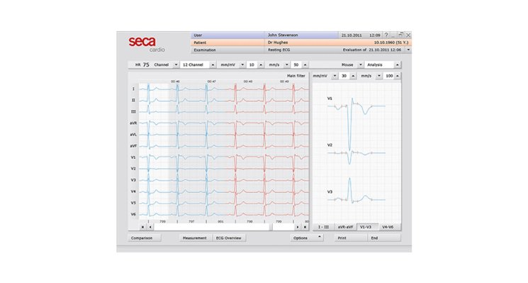 SECA CT321 Bluetooth Interpretive PC ECG (Discontinued)